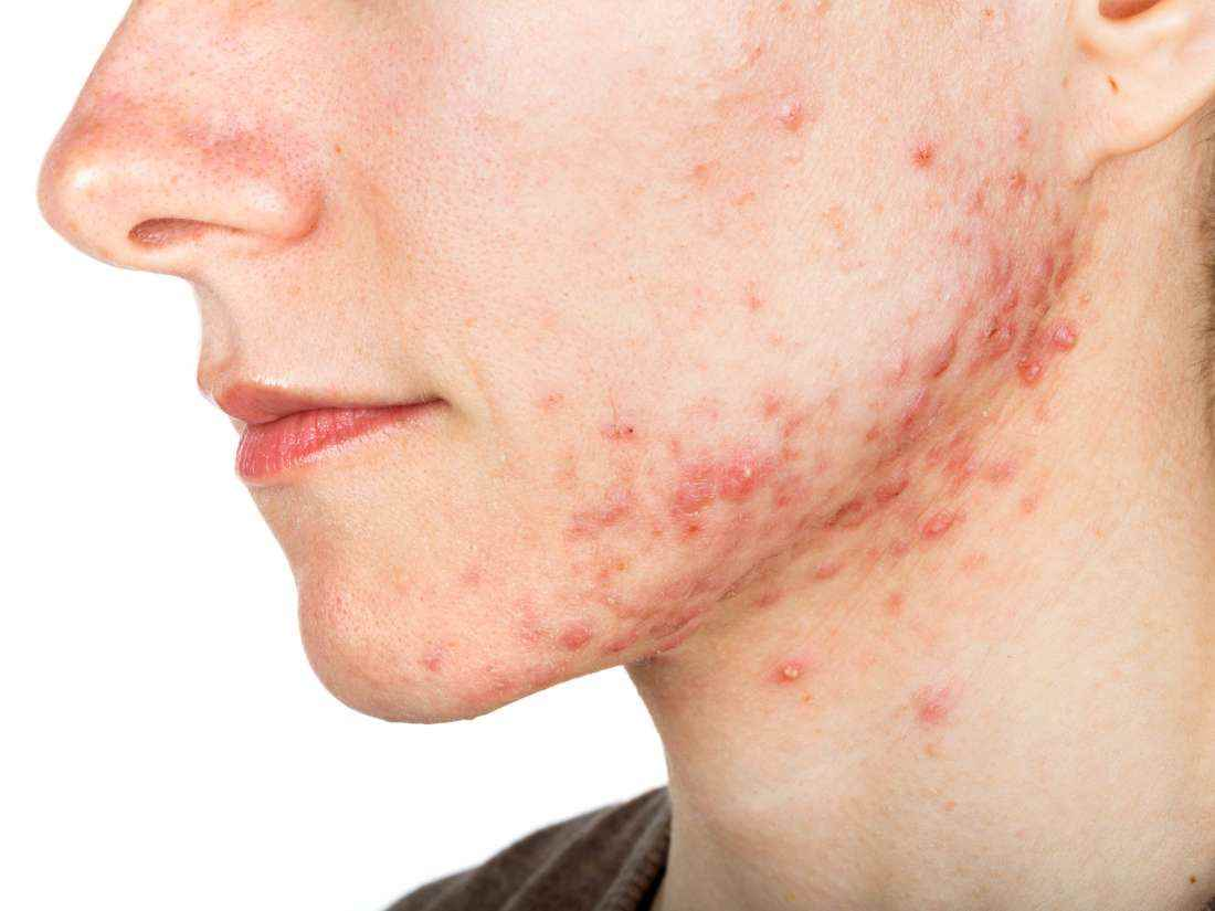 Using a Humidifier for Acne Prone Skin Reduces Breakouts